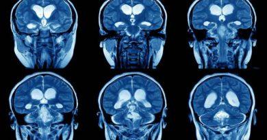 Zeki İnsanların Beyin Yapısının Daha Farklı Olduğu Tespit Edildi!