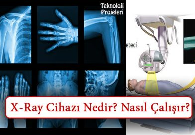 X-Ray Cihazı Nedir? Nasıl Çalışır? Ne İşe Yarar?