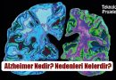 Alzheimer Nedir? Nedenleri, Belirtileri, Korunma Yolları ve Tedavisi Nelerdir?